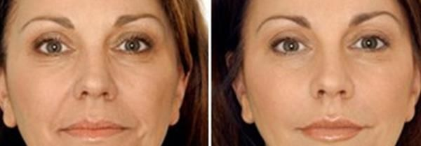 Фракційне лазерне омолодження шкіри обличчя в Києві
