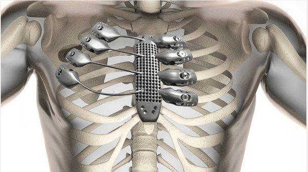 В іспанії провели першу в світі операцію з пересадки ребер, надрукованих на 3d-принтері